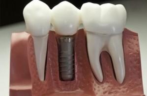 Основные направления стоматологии