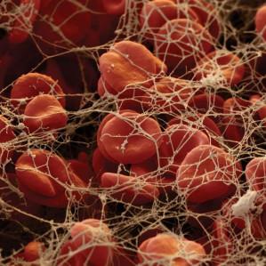 ГемаКор принимает участие в конференции«Патология гемостаза – общеклиническая проблема»