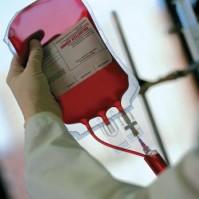 Криозаморозка пуповинной крови позволяет сохранить до 74% клеток-предшественниц нервных клеток