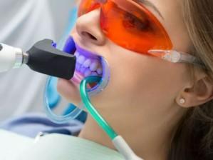 Лазерное отбеливание зубов всего за 1000 грн
