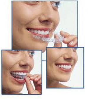 кап для выравнивания зубов